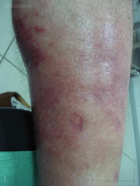 Если не лечить рожистое воспаление ноги в домашних условиях 452
