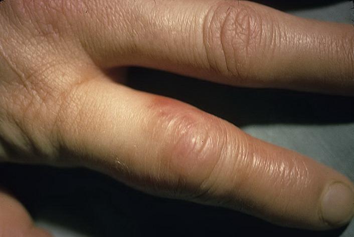 кожное заболевание рожа