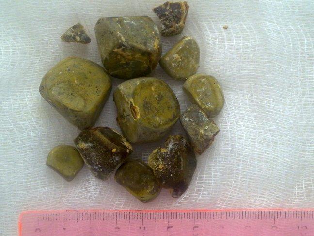 Камни в желчном как выглядят
