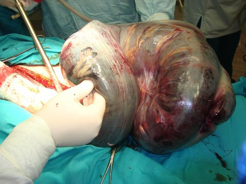 Хлоргексидин при тромбофлебите