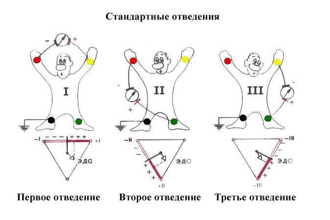 Как снять экг схема наложения электродов и присосок
